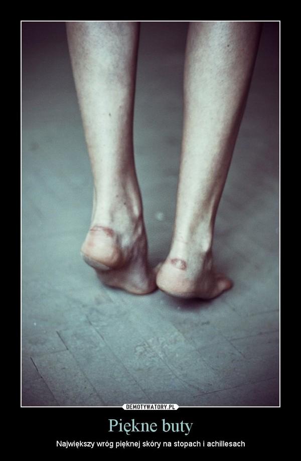 685d33bb6aa48 Piękne buty – Największy wróg pięknej skóry na stopach ...