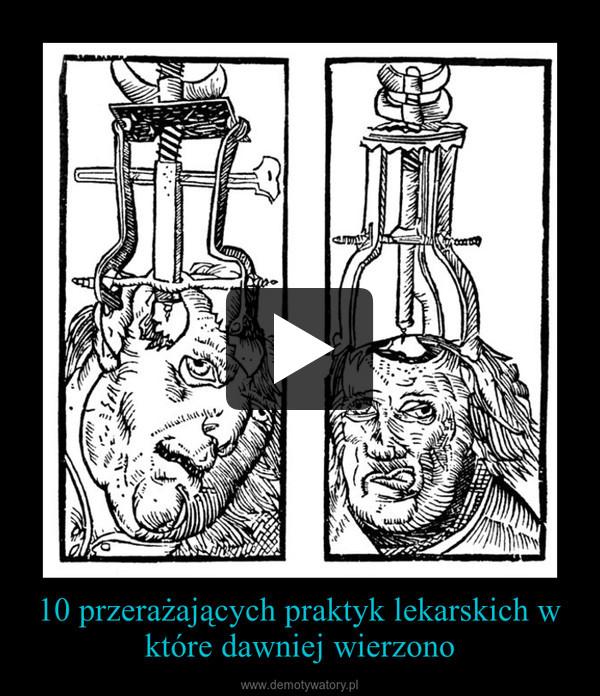 10 przerażających praktyk lekarskich w które dawniej wierzono –