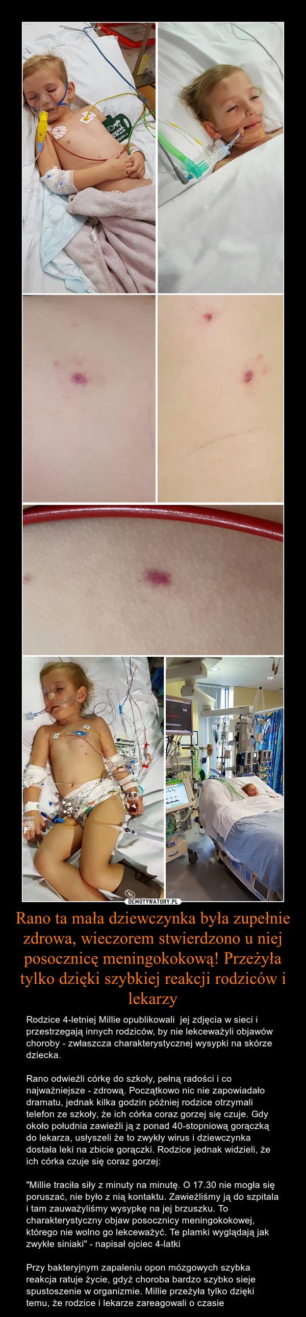 """Rano ta mała dziewczynka była zupełnie zdrowa, wieczorem stwierdzono u niej posocznicę meningokokową! Przeżyła tylko dzięki szybkiej reakcji rodziców i lekarzy – Rodzice 4-letniej Millie opublikowali  jej zdjęcia w sieci i przestrzegają innych rodziców, by nie lekceważyli objawów choroby - zwłaszcza charakterystycznej wysypki na skórze dziecka. Rano odwieźli córkę do szkoły, pełną radości i co najważniejsze - zdrową. Początkowo nic nie zapowiadało dramatu, jednak kilka godzin później rodzice otrzymali telefon ze szkoły, że ich córka coraz gorzej się czuje. Gdy około południa zawieźli ją z ponad 40-stopniową gorączką do lekarza, usłyszeli że to zwykły wirus i dziewczynka dostała leki na zbicie gorączki. Rodzice jednak widzieli, że ich córka czuje się coraz gorzej:""""Millie traciła siły z minuty na minutę. O 17.30 nie mogła się poruszać, nie było z nią kontaktu. Zawieźliśmy ją do szpitala i tam zauważyliśmy wysypkę na jej brzuszku. To charakterystyczny objaw posocznicy meningokokowej, którego nie wolno go lekceważyć. Te plamki wyglądają jak zwykłe siniaki"""" - napisał ojciec 4-latkiPrzy bakteryjnym zapaleniu opon mózgowych szybka reakcja ratuje życie, gdyż choroba bardzo szybko sieje spustoszenie w organizmie. Millie przeżyła tylko dzięki temu, że rodzice i lekarze zareagowali o czasie"""