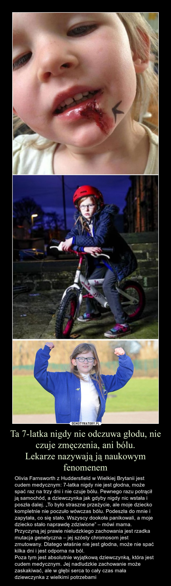 """Ta 7-latka nigdy nie odczuwa głodu, nie czuje zmęczenia, ani bólu.Lekarze nazywają ją naukowym fenomenem – Olivia Farnsworth z Huddersfield w Wielkiej Brytanii jest cudem medycznym: 7-latka nigdy nie jest głodna, może spać raz na trzy dni i nie czuje bólu. Pewnego razu potrącił ją samochód, a dziewczynka jak gdyby nigdy nic wstała i poszła dalej. """"To było straszne przeżycie, ale moje dziecko kompletnie nie poczuło wówczas bólu. Podeszła do mnie i zapytała, co się stało. Wszyscy dookoła panikowali, a moje dziecko stało naprawdę zdziwione"""" – mówi mama.Przyczyną jej prawie nieludzkiego zachowania jest rzadka mutacja genetyczna – jej szósty chromosom jest zmutowany. Dlatego właśnie nie jest głodna, może nie spać kilka dni i jest odporna na ból.Poza tym jest absolutnie wyjątkową dziewczynką, która jest cudem medycznym. Jej nadludzkie zachowanie może zaskakiwać, ale w głębi serca to cały czas mała dziewczynka z wielkimi potrzebami"""