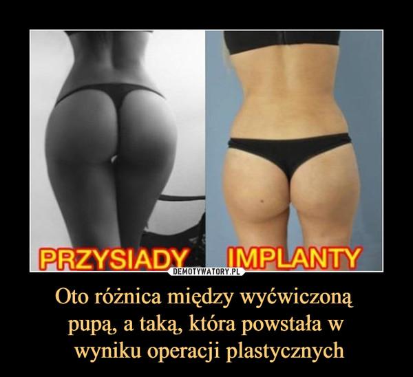 Oto różnica między wyćwiczoną pupą, a taką, która powstała w wyniku operacji plastycznych –