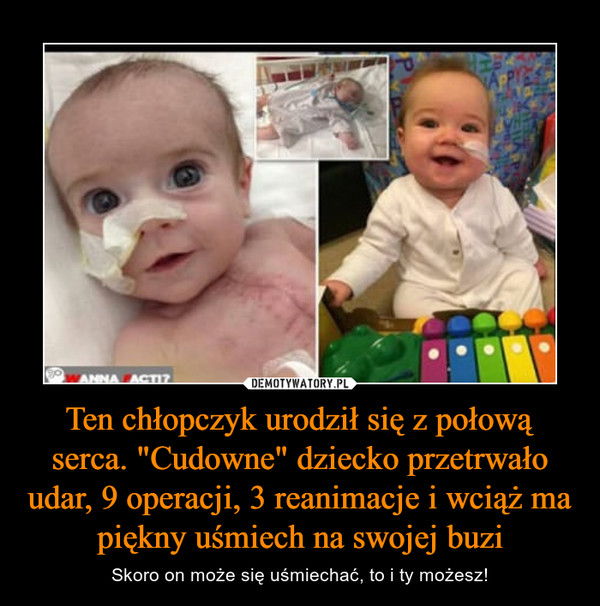 """Ten chłopczyk urodził się z połową serca. """"Cudowne"""" dziecko przetrwało udar, 9 operacji, 3 reanimacje i wciąż ma piękny uśmiech na swojej buzi – Skoro on może się uśmiechać, to i ty możesz!"""