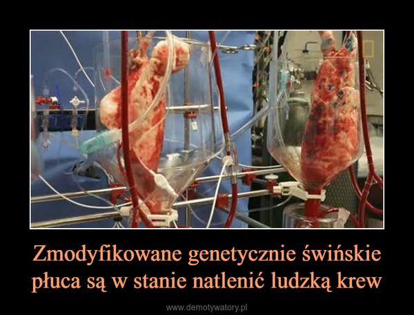 Zmodyfikowane genetycznie świńskie płuca są w stanie natlenić ludzką krew –