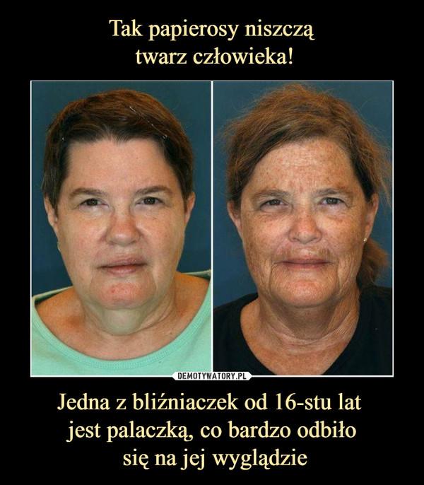 Jedna z bliźniaczek od 16-stu lat jest palaczką, co bardzo odbiło się na jej wyglądzie –