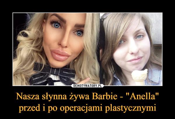 """Nasza słynna żywa Barbie - """"Anella"""" przed i po operacjami plastycznymi –"""