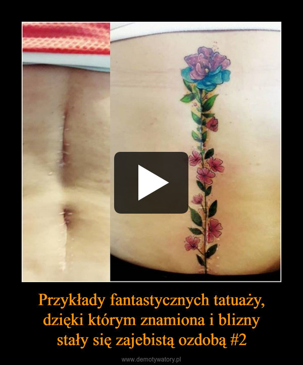 Przykłady fantastycznych tatuaży,dzięki którym znamiona i bliznystały się zajebistą ozdobą #2 –