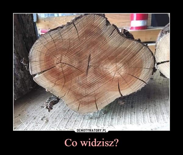 Co widzisz? –