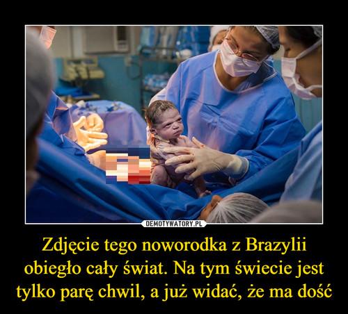 Zdjęcie tego noworodka z Brazylii obiegło cały świat. Na tym świecie jest tylko parę chwil, a już widać, że ma dość