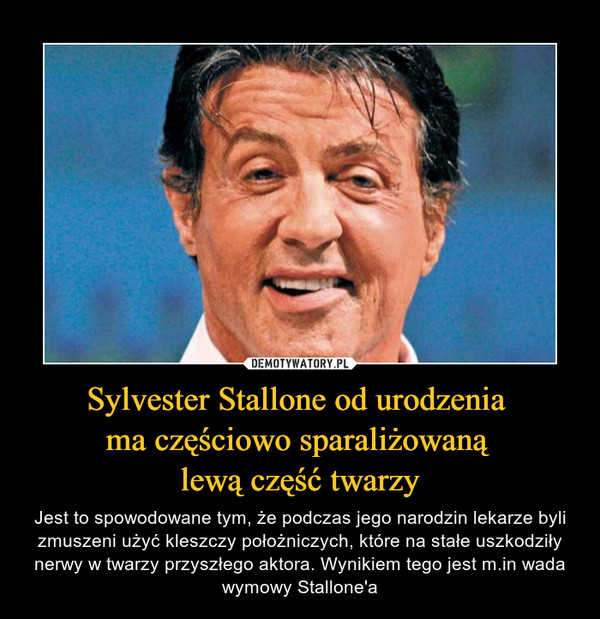 Sylvester Stallone od urodzenia ma częściowo sparaliżowaną lewą część twarzy – Jest to spowodowane tym, że podczas jego narodzin lekarze byli zmuszeni użyć kleszczy położniczych, które na stałe uszkodziły nerwy w twarzy przyszłego aktora. Wynikiem tego jest m.in wada wymowy Stallone'a