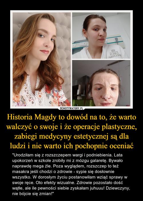 Historia Magdy to dowód na to, że warto walczyć o swoje i że operacje plastyczne, zabiegi medycyny estetycznej są dla ludzi i nie warto ich pochopnie oceniać