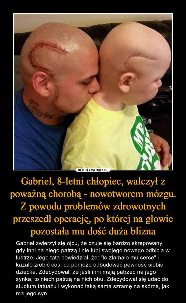 """Gabriel, 8-letni chłopiec, walczył z poważną chorobą - nowotworem mózgu. Z powodu problemów zdrowotnych przeszedł operację, po której na głowie pozostała mu dość duża blizna – Gabriel zwierzył się ojcu, że czuje się bardzo skrępowany, gdy inni na niego patrzą i nie lubi swojego nowego odbicia w lustrze. Jego tata powiedział, że: """"to złamało mu serce"""" i kazało zrobić coś, co pomoże odbudować pewność siebie dziecka. Zdecydował, że jeśli inni mają patrzeć na jego synka, to niech patrzą na nich obu. Zdecydował się udać do studium tatuażu i wykonać taką samą szramę na skórze, jak ma jego syn"""