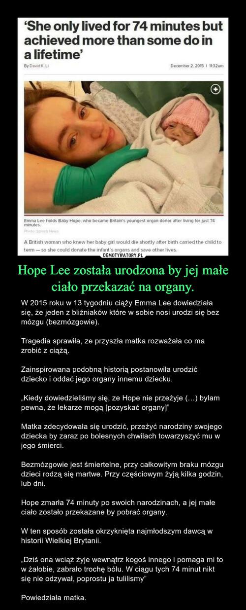 Hope Lee została urodzona by jej małe ciało przekazać na organy.