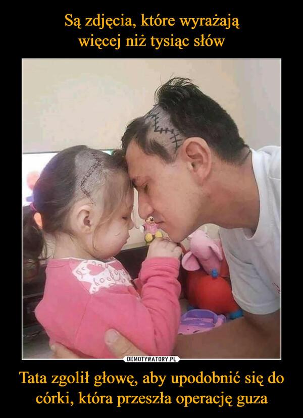 Tata zgolił głowę, aby upodobnić się do córki, która przeszła operację guza –